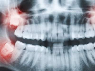 X-ray showing wisdom teeth erupting through gums